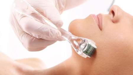 Skin-Needling-Training